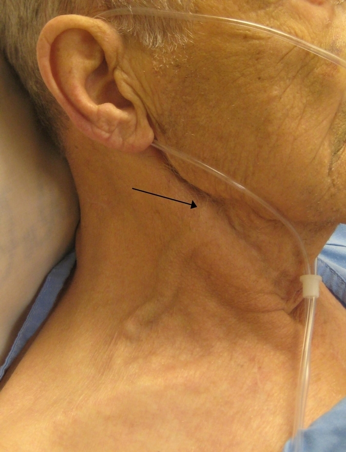 Distended external jugular vein demonstrating raised venous pressure